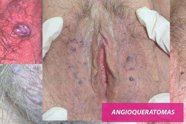angioqueratomas