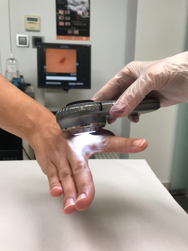 Dermatoscopio01